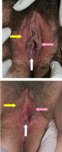 vulva_skin_textures
